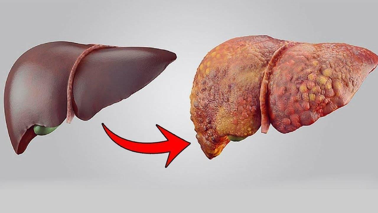 Опасность справа. развенчиваем главные мифы о работе печени