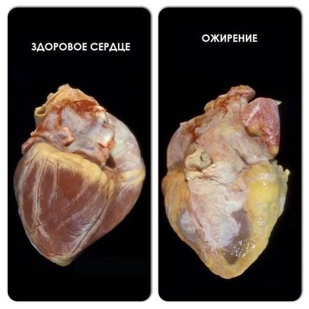 Пивное (бычье) сердце: симптомы и лечение