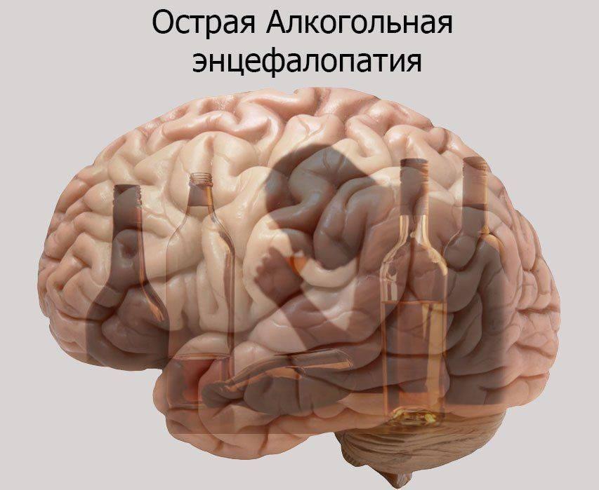 Алкогольная энцефалопатия причины, симптомы, стадии заболевания и методы лечения
