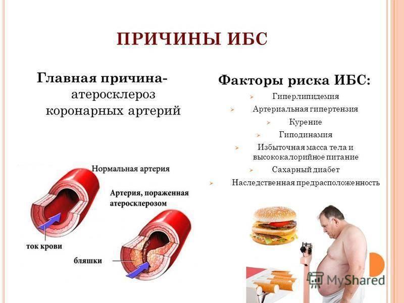 Употребление алкоголя при стенокардии