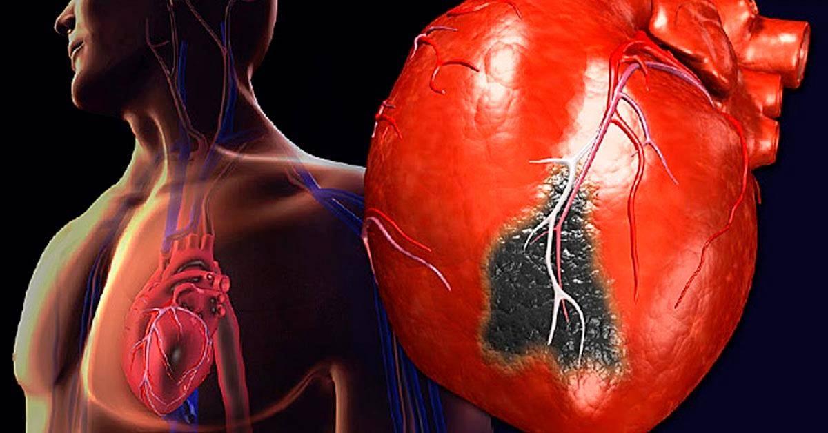 Муж стал пить после инфаркта - все про гипертонию