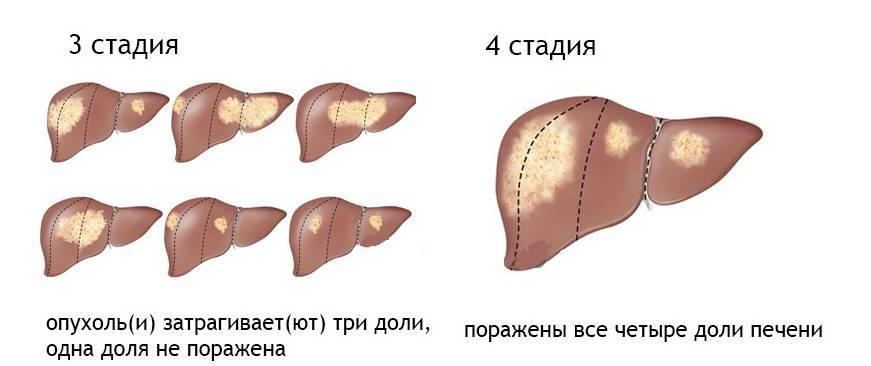 Можно ли жить без печени: прогноз жизни, если отказал орган