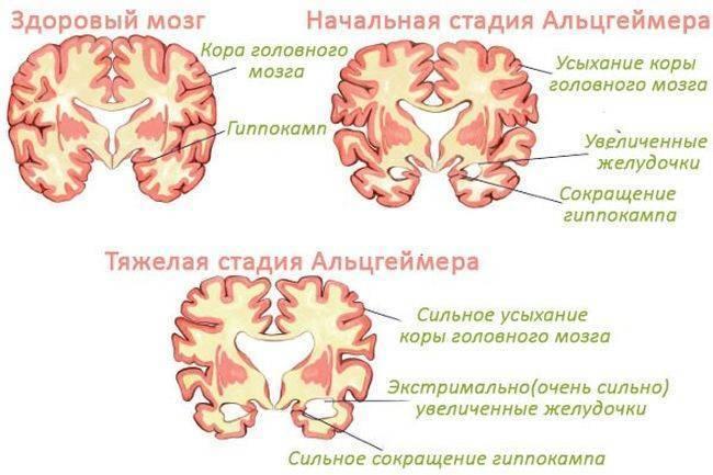 10 способов остановить деградацию мозга