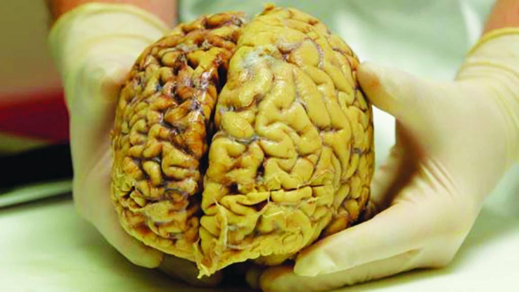 Причины отека мозга у пожилых