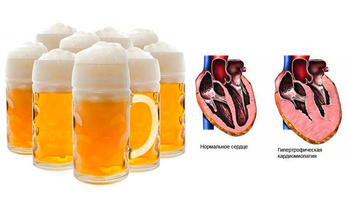 Пивной алкоголизм: особенности развития у пациентов и пути лечения от зависимости
