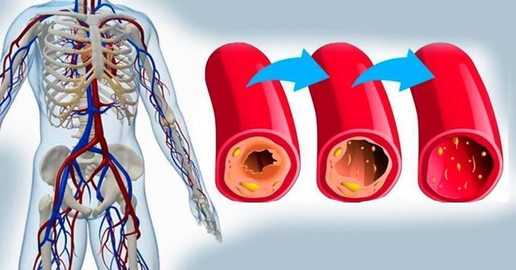 Лечение атеросклероза сосудов нижних конечностей в домашних условиях